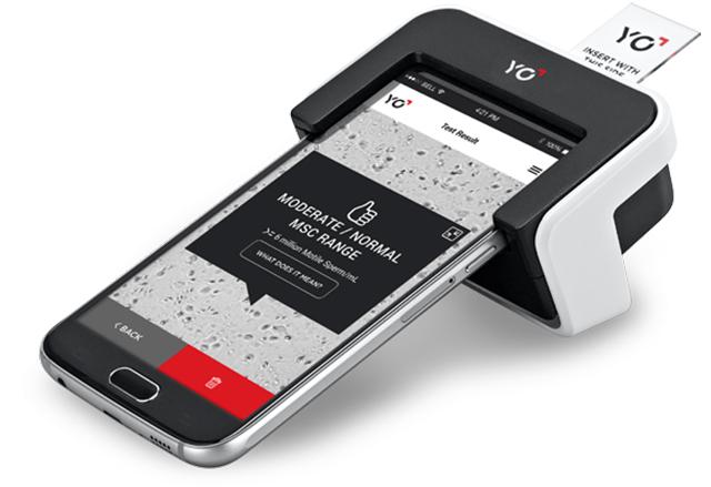 YO Sperm Test е смартфон приставка, с която мъжете могат да тестват качествата на своята сперма