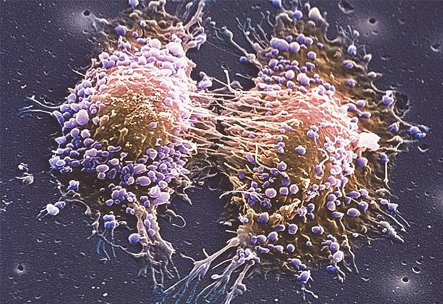 Ново лечение на рака на простатата е успешно при почти половината от тестваните пациенти