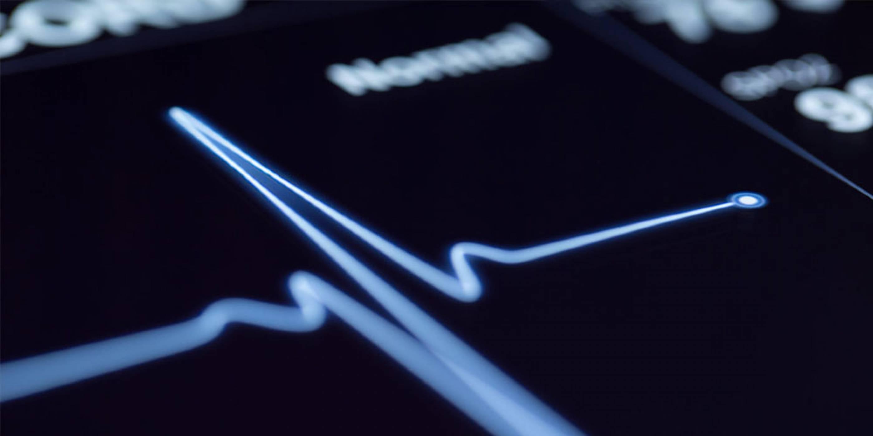 Изкуствен интелект предсказва риска от сърдечносъдови заболявания с голяма точност