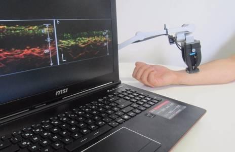 Разработиха нов сензор за диагностика на псориазис
