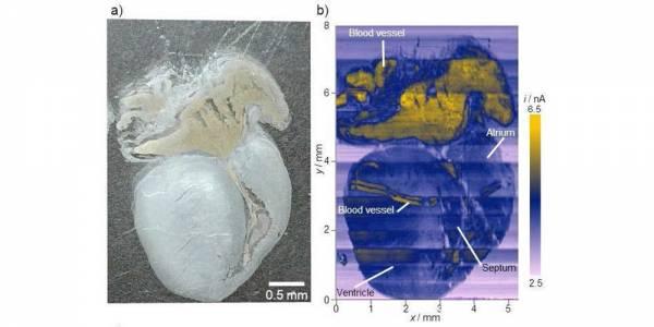 Изследователи използват електрически ток, за да откриват рак в човешка тъкан