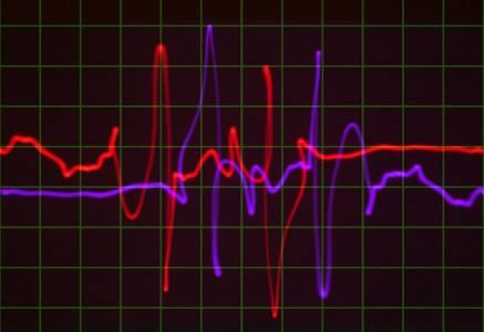 Пентагонът притежава лазер, който може да ви разпознае по пулса на сърцето