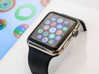 Изтече ключова информация за следващия Apple Watch (СНИМКА)