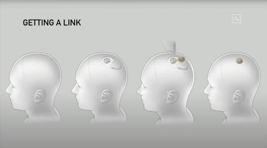 Илон Мъск демонстрира Neuralink с помощта на прасе (ВИДЕО)