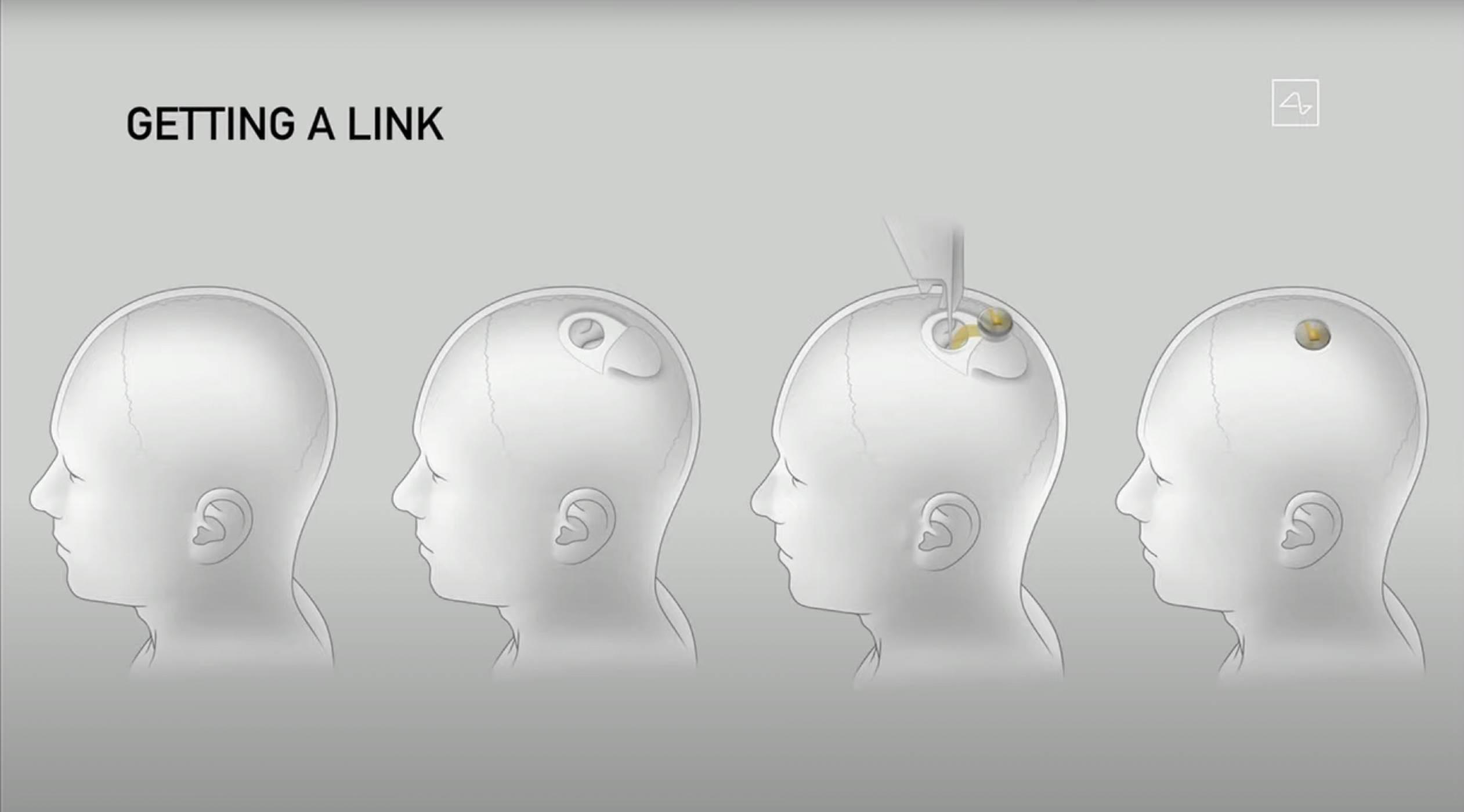 Дискусия в Twitter относно Neuralink отново повиши напрежението