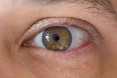 Сухотата на очите влияе на физическото и психическото здраве, както и на зрението