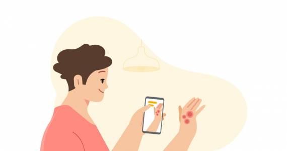 Googleще използва изкуствен интелект за разпознаване на кожни заболявания